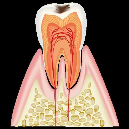real-teeth002
