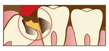 親知らずの虫歯のイラスト